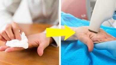 5 dấu hiệu bất thường xảy ra ở đôi bàn tay mà bạn không nên chủ quan bỏ qua - Kiến Thức Chia Sẻ 14