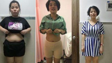 """Hình Ảnh Cho rằng bác sĩ lừa mình vì """"không có cách giảm cân như thế"""" nhưng cô gái vẫn làm theo và giảm tới 17,4kg - Kiến Thức Chia Sẻ Kênh Kiến Thức Và Tri Thức"""