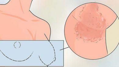 Ngứa dữ dội ở vùng ngực có thể ngầm cảnh báo 5 vấn đề sức khỏe sau đây - Kiến Thức Chia Sẻ 6
