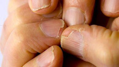 5 dấu hiệu cảnh báo cơ thể thiếu sắt nghiêm trọng mà bạn không nên chủ quan bỏ qua - Kiến Thức Chia Sẻ 8