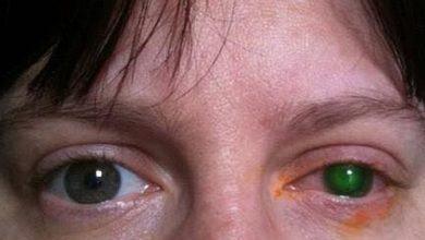 Hình Ảnh Người phụ nữ 39 tuổi bị viêm giác mạc chỉ vì đi bơi quên bỏ thứ này ra khỏi mắt - Kiến Thức Chia Sẻ Kênh Kiến Thức Và Tri Thức
