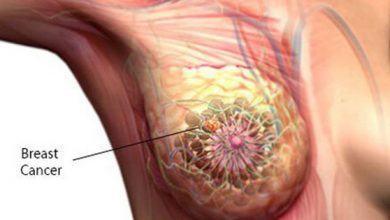 Phụ nữ giữ thói quen ăn uống như thế này rất dễ bị ung thư vú - Kiến Thức Chia Sẻ 3