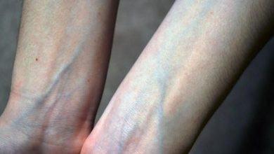 Thấy gân xanh nổi lên ở những khu vực này thì đừng chủ quan xem thường mà nên đi khám ngay - Kiến Thức Chia Sẻ 6