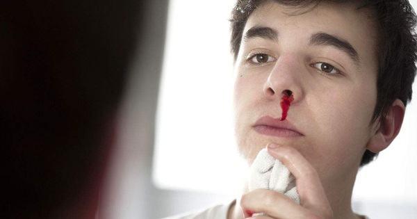 Thường xuyên chảy máu cam có thể là do một số vấn đề sức khỏe sau đây gây ra - Kiến Thức Chia Sẻ 1