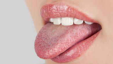 Những dấu hiệu khác lạ ở vùng lưỡi cảnh báo một số vấn đề sức khỏe mà bạn không hề hay biết - Kiến Thức Chia Sẻ 7