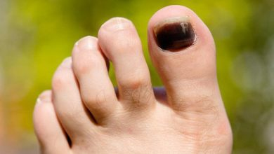 Thấy móng chân xuất hiện những vệt tím đen là những dấu hiệu cảnh báo sức khỏe mà bạn không nên xem thường - Kiến Thức Chia Sẻ 3