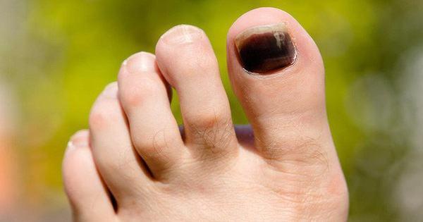 Thấy móng chân xuất hiện những vệt tím đen là những dấu hiệu cảnh báo sức khỏe mà bạn không nên xem thường - Kiến Thức Chia Sẻ 17