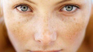 Bật mí bí quyết giúp ngừa tăng sắc tố da vào mùa hè 5