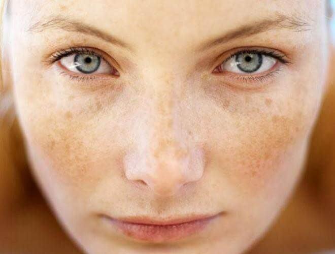 Bật mí bí quyết giúp ngừa tăng sắc tố da vào mùa hè 6